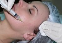 Мезотерапия тела и лица: сохраните вашу молодость