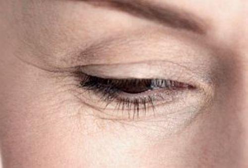 Первые морщинки вокруг глаз: ничего страшного