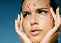 Особенности ухода за проблемной и жирной кожей