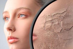 Косметические маски в уходе за сухой кожей лица