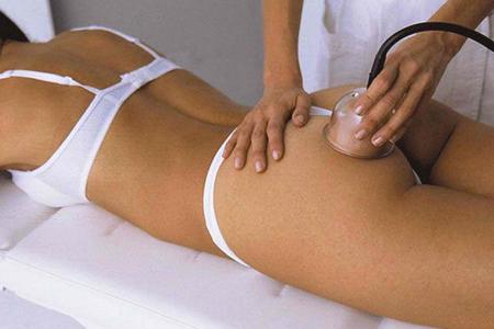 Вакуумный массаж поможет избавиться от целлюлита