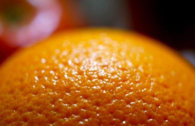 Диагностика и лечение целлюлита