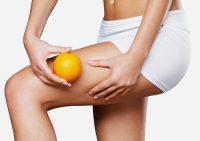 Основные способы лечения целлюлита