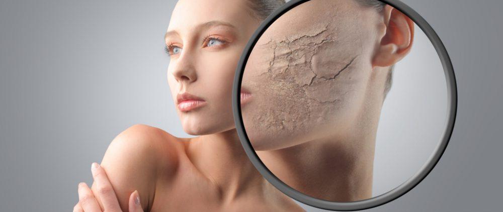 Чувствительная кожа особо нуждается в уходе весной