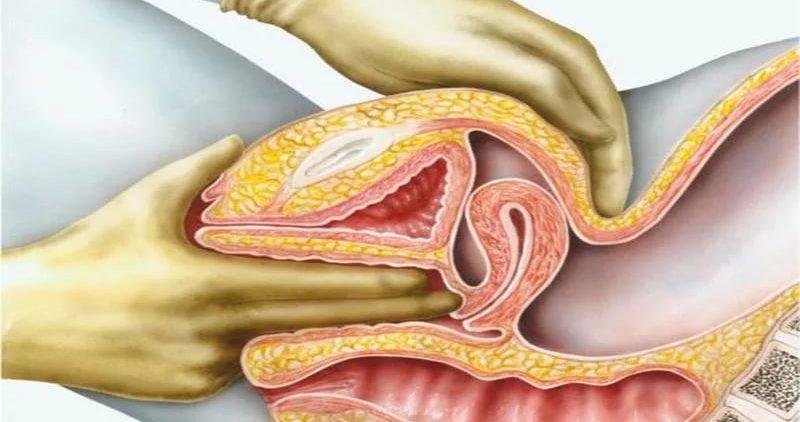 Опухоль яичника: классификация