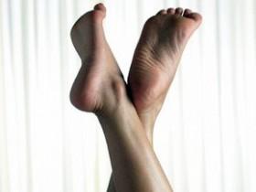 Потливость ног, трещины на пятках, мозоли