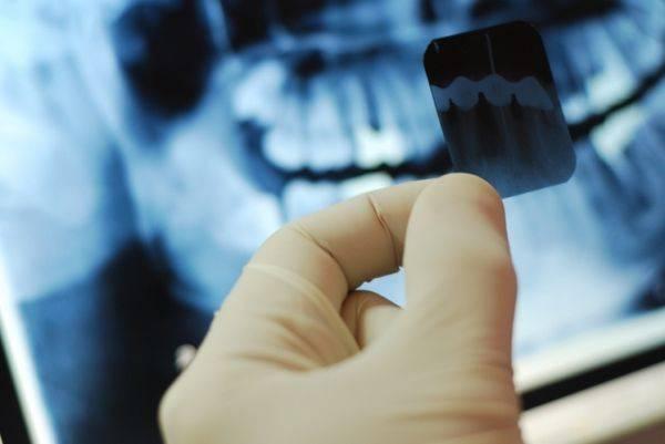 Базальная имплантация с немедленной загрузкой при полном отсутствии зубов