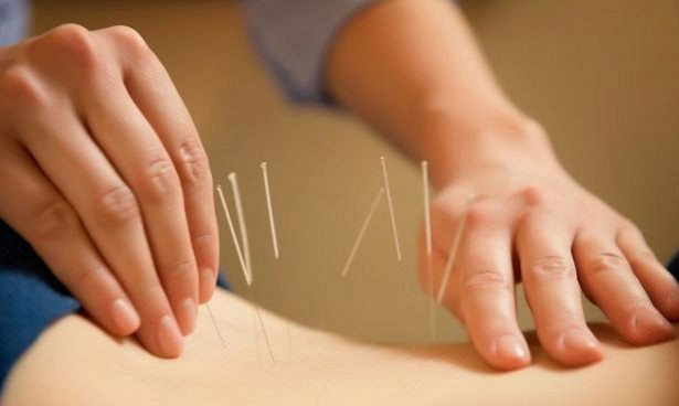Подтверждено: иголки помогают от женских болей