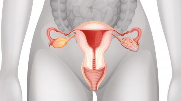Миома матки – причины, клиника и лечение