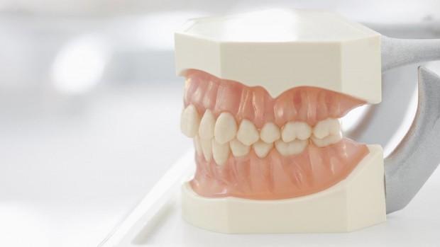 Методы фторирование зубов – показания и противопоказания