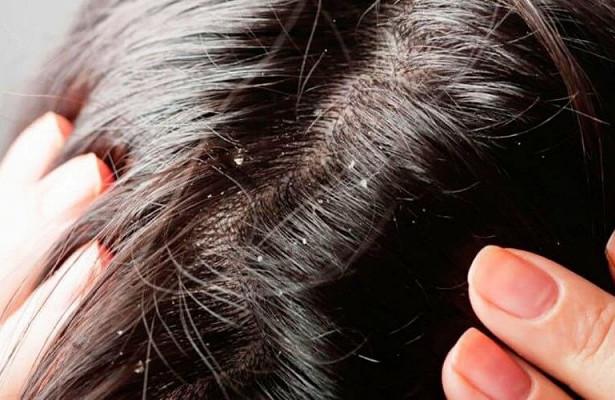Ученые выяснили причину перхоти на голове
