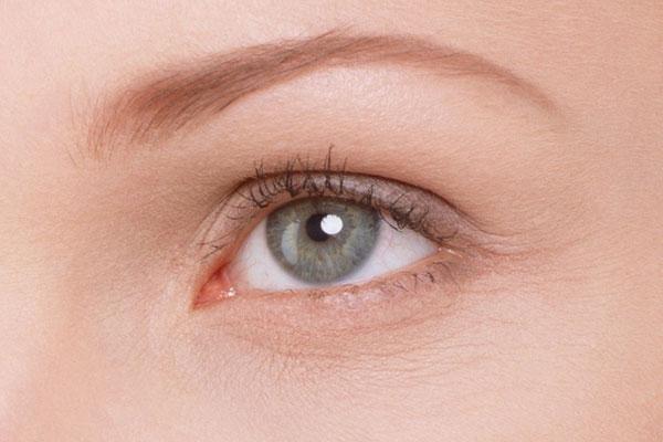 Первые морщинки вокруг глаз