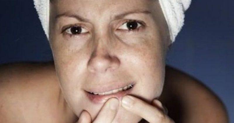 5 советов по уходу за воспаленной кожей