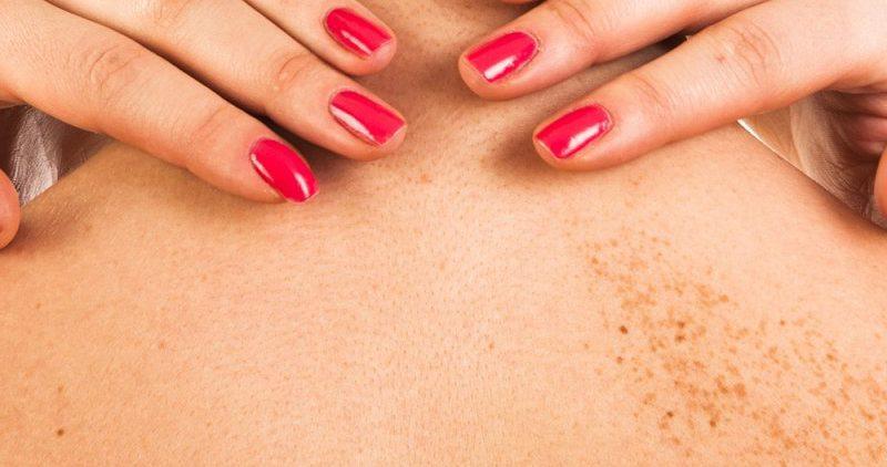 Причиной пигментных пятен на коже являются выхлопные газы от автомобилей