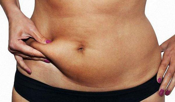 Стало известно, какое лечение избавит от жира на животе