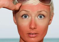 Загар и лекарства: какие последствия для кожи возникают при использовании солнцезащитных средств