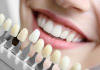 Испорченные зубы или красивая улыбка: 6 мифов о винирах