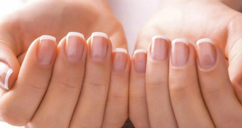 Проблемы с ногтями, которые говорят об имеющихся заболеваниях