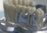 Качественное протезирование зубов в клинике Dentalika