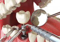 Имплантация зубов — шанс на красивую улыбку