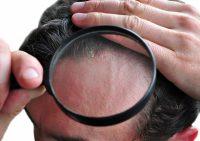 Распространенные заболевания кожи волосистой части головы