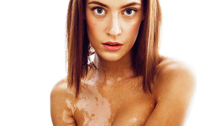 Густые и сильные: как предотвратить выпадение волос