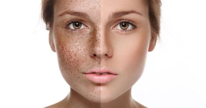 Почему кожа остается сухой, несмотря на правильный уход