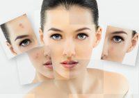 5 лайфхаков от прыщей: полезные трюки для чистой кожи