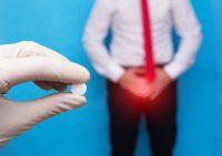 Как лечить трихомониаз у мужчин?