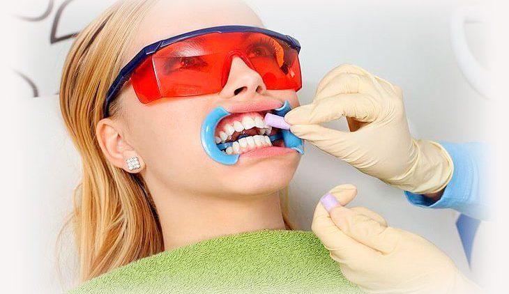 Зачем нужна процедура отбеливания зубов?
