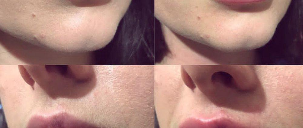 Увеличение губ: современные техники, формы, противопоказания, советы специалистов