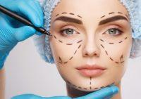 Мода на естественность: почему девушки продолжают колоть «утиные» губы и может ли косметолог отказать пациенту