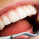 Срочное средство от прыщей: как использовать зубную пасту