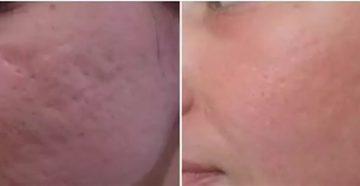 Можно ли избавиться от шрамов после фурункулов?