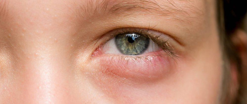 Опухшие глаза: как бороться с недугом