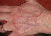 Как лечить гнойную гранулему