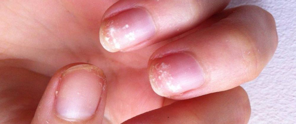 Крошатся и ломаются: Что делать, если слоятся ногти?