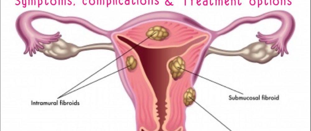 Заболевание миома: это полезно знать каждой женщине