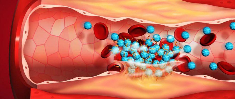 Тромбоз — это заболеваниеовых состояниях