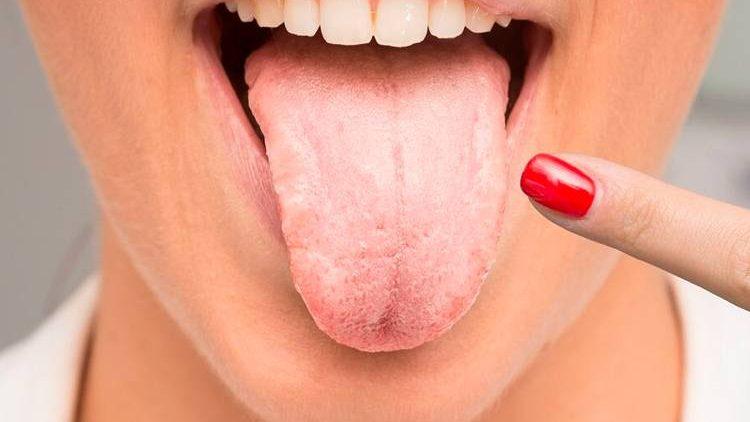 Кандидозы полости рта – симптомы