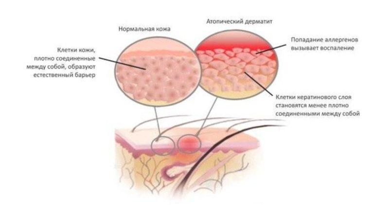 Ученые предложили лечить атопический дерматит бактериями