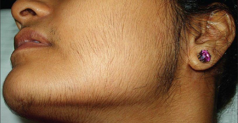7 причин появления «лишних» волос на лице и теле