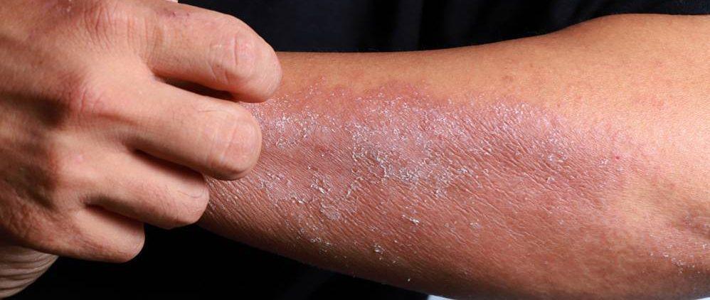 Советы по уходу за кожей при атопическом дерматите
