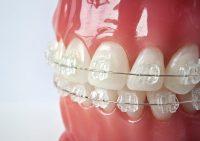Сапфировые брекеты от «Клиники восстановительной стоматологии»