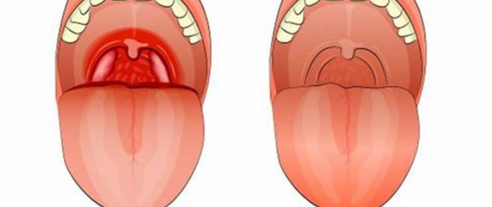 Местная терапия при ангинах у детей