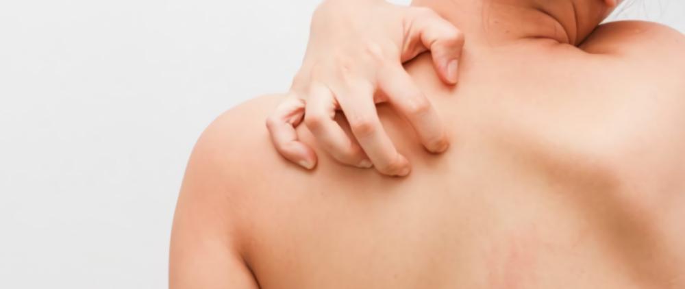 Причины, признаки и лечение чесотки