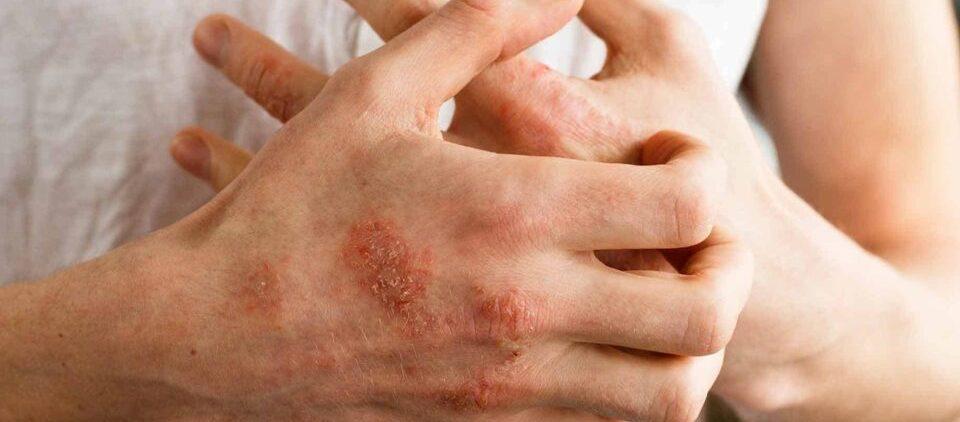 Аллергический дерматит: названы симптомы и способы лечения