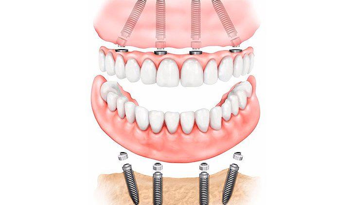 Протезирование зубов при частичной потере