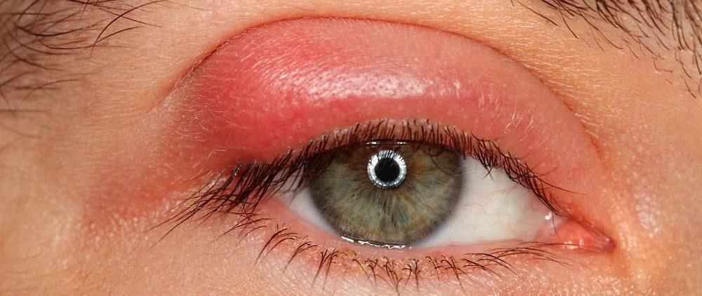 Ячмень на глазах: от чего возникает, лечение