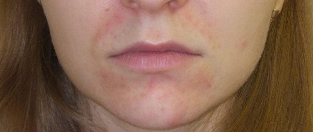 На лбу, на подбородке, на носу: что ваши прыщики говорят о здоровье?
